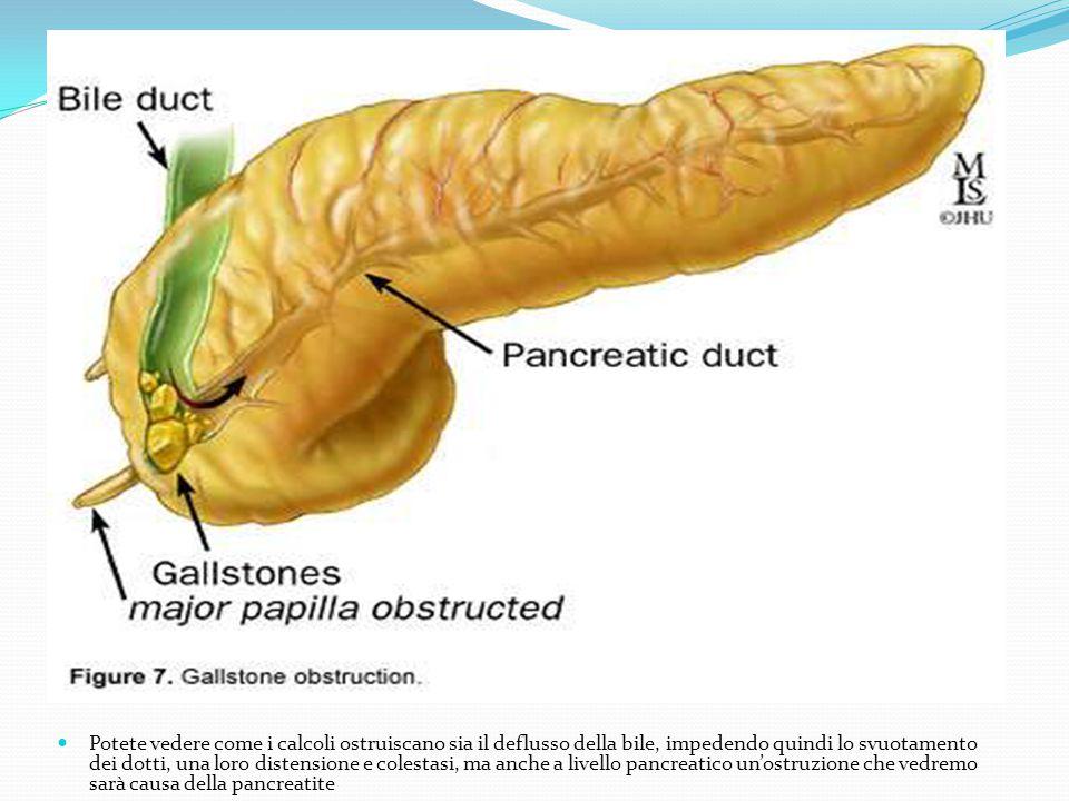 Potete vedere come i calcoli ostruiscano sia il deflusso della bile, impedendo quindi lo svuotamento dei dotti, una loro distensione e colestasi, ma anche a livello pancreatico un'ostruzione che vedremo sarà causa della pancreatite