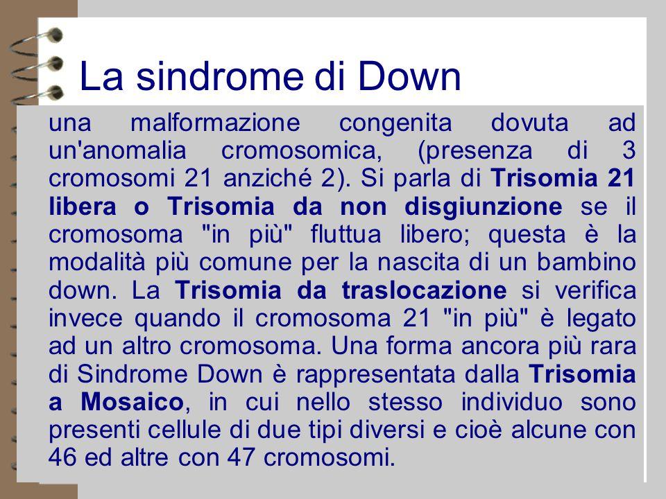 La sindrome di Down