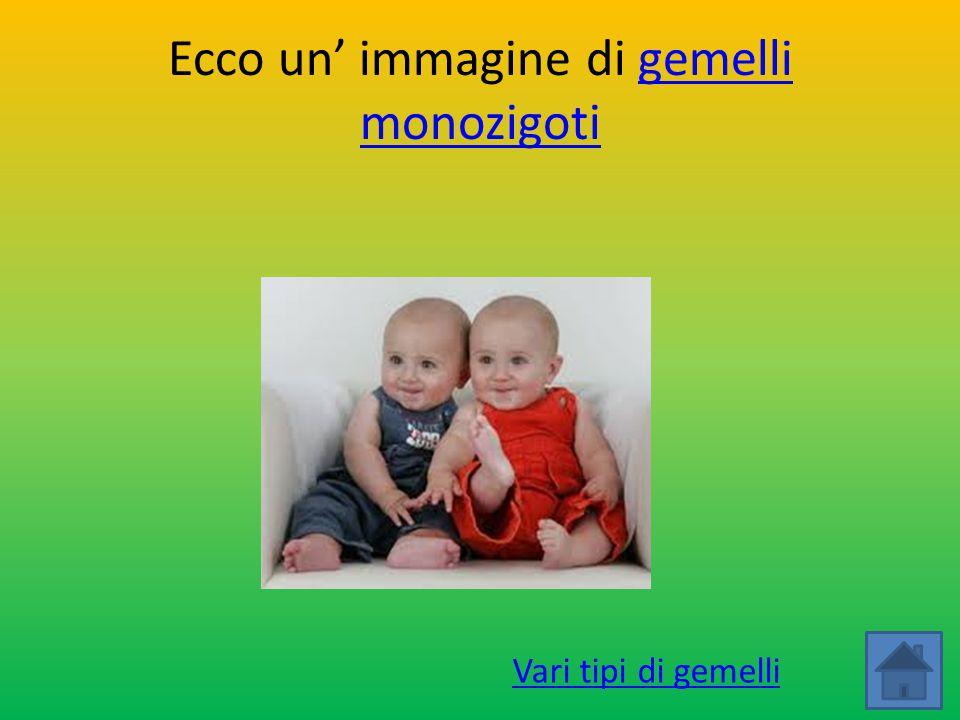 Ecco un' immagine di gemelli monozigoti