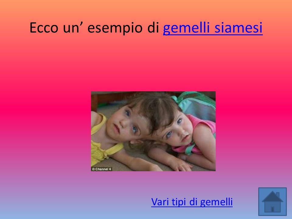 Ecco un' esempio di gemelli siamesi