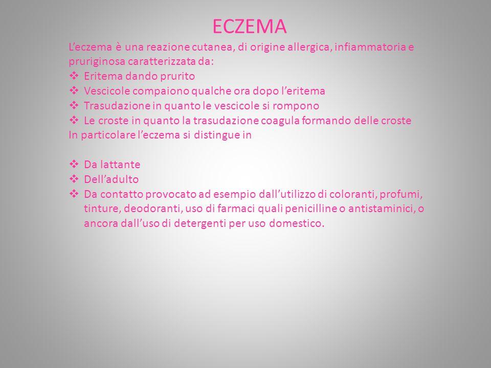 ECZEMA L'eczema è una reazione cutanea, di origine allergica, infiammatoria e pruriginosa caratterizzata da: