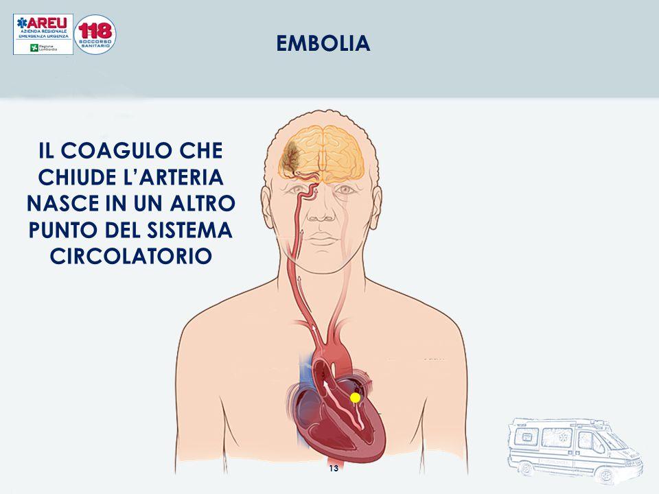 EMBOLIA IL COAGULO CHE CHIUDE L'ARTERIA NASCE IN UN ALTRO PUNTO DEL SISTEMA CIRCOLATORIO