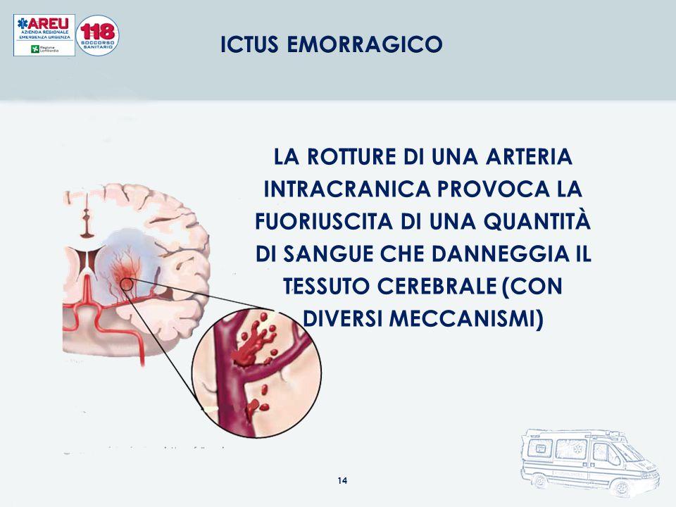 ICTUS EMORRAGICO