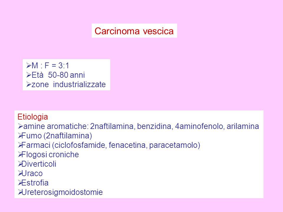Carcinoma vescica M : F = 3:1 Età 50-80 anni zone industrializzate