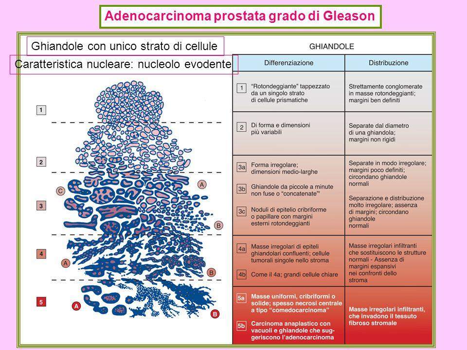 Adenocarcinoma prostata grado di Gleason