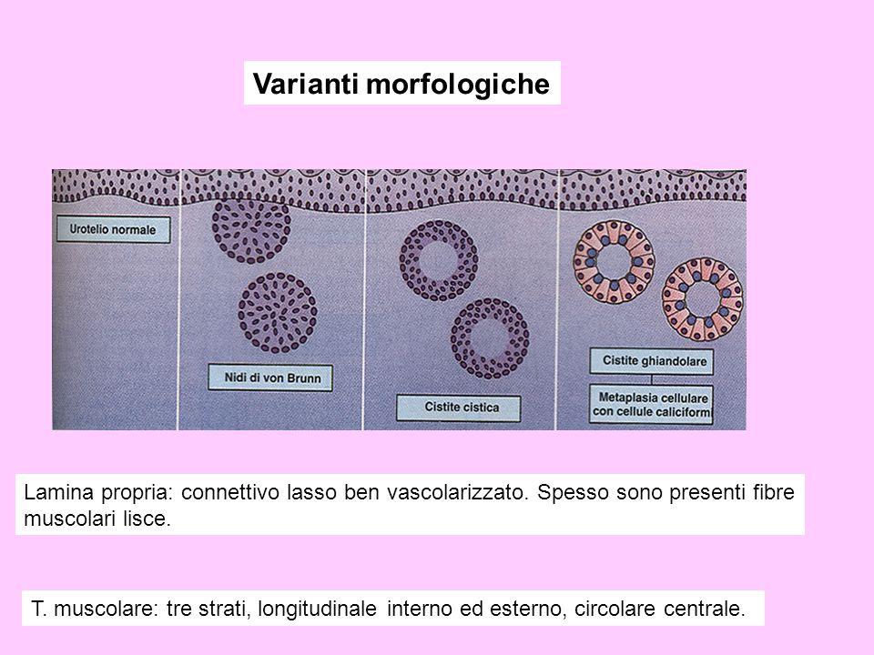 Varianti morfologiche