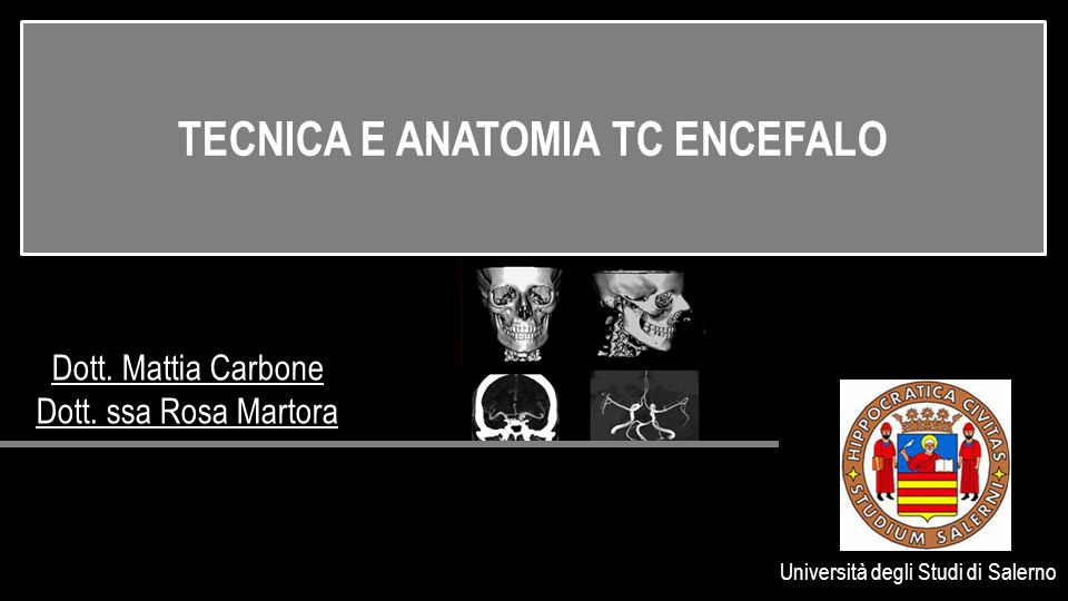 TECNICA E ANATOMIA TC ENCEFALO