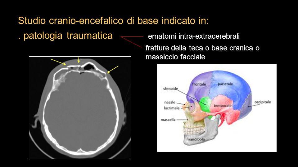 Studio cranio-encefalico di base indicato in:
