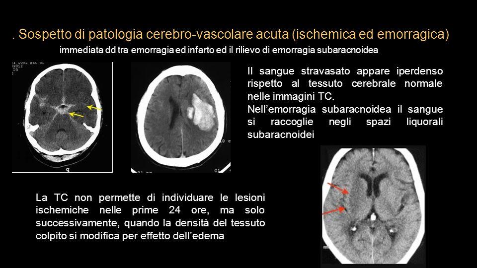 . Sospetto di patologia cerebro-vascolare acuta (ischemica ed emorragica) immediata dd tra emorragia ed infarto ed il rilievo di emorragia subaracnoidea