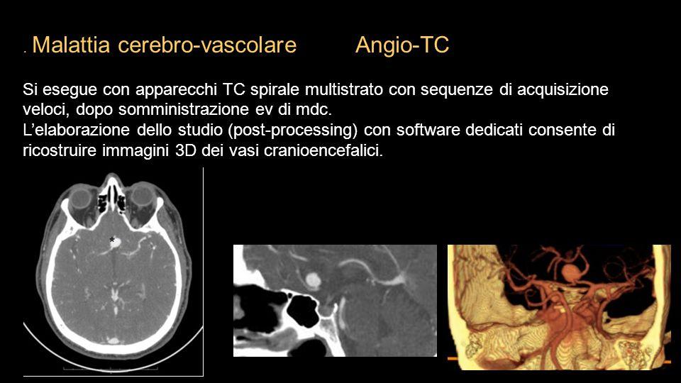 . Malattia cerebro-vascolare Angio-TC