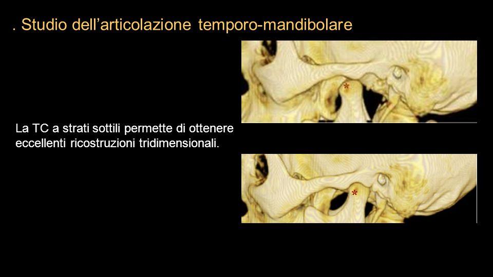 . Studio dell'articolazione temporo-mandibolare