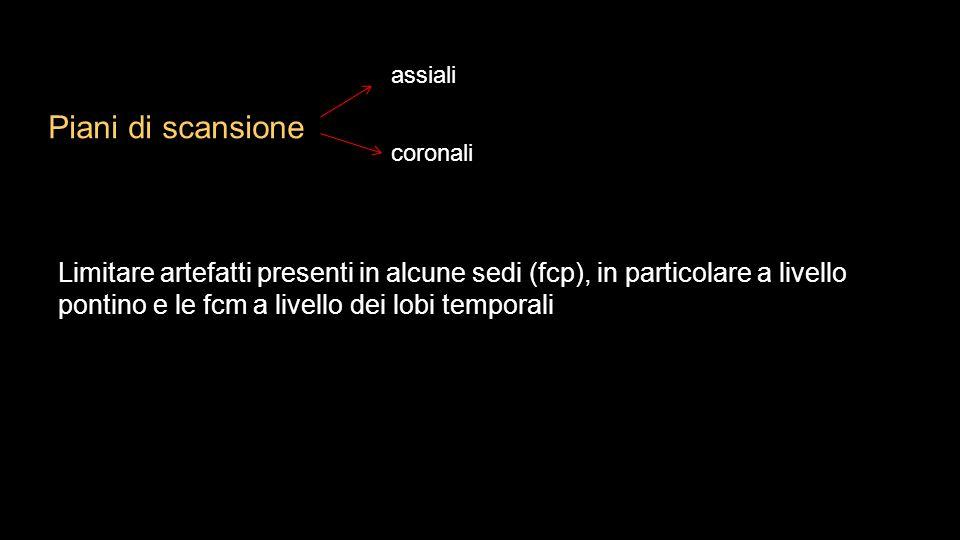 Tecnica e anatomia tc encefalo ppt video online scaricare for Piani di coperta multi livello