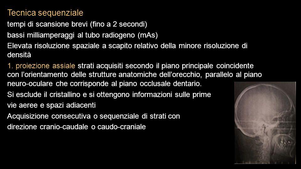 Tecnica sequenziale tempi di scansione brevi (fino a 2 secondi)