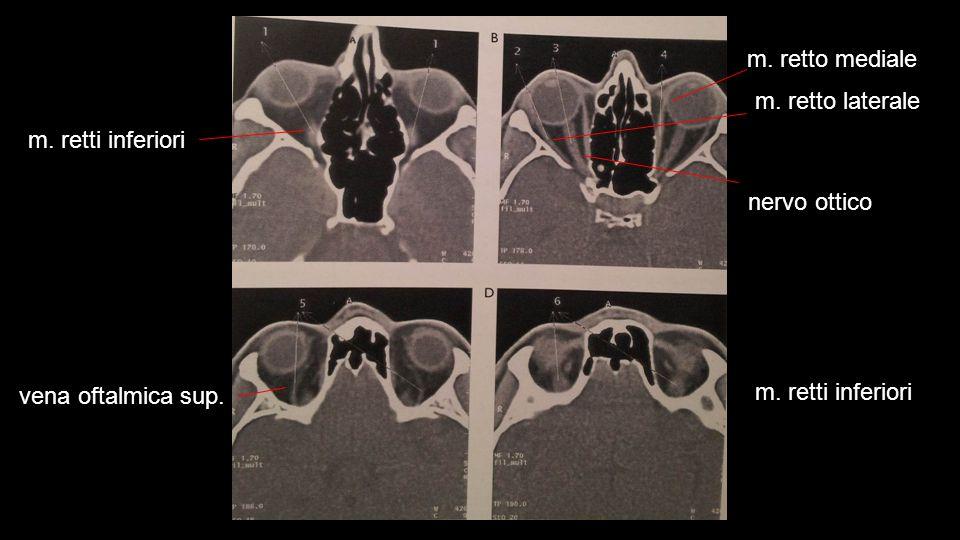 m. retto mediale m. retto laterale. m. retti inferiori.