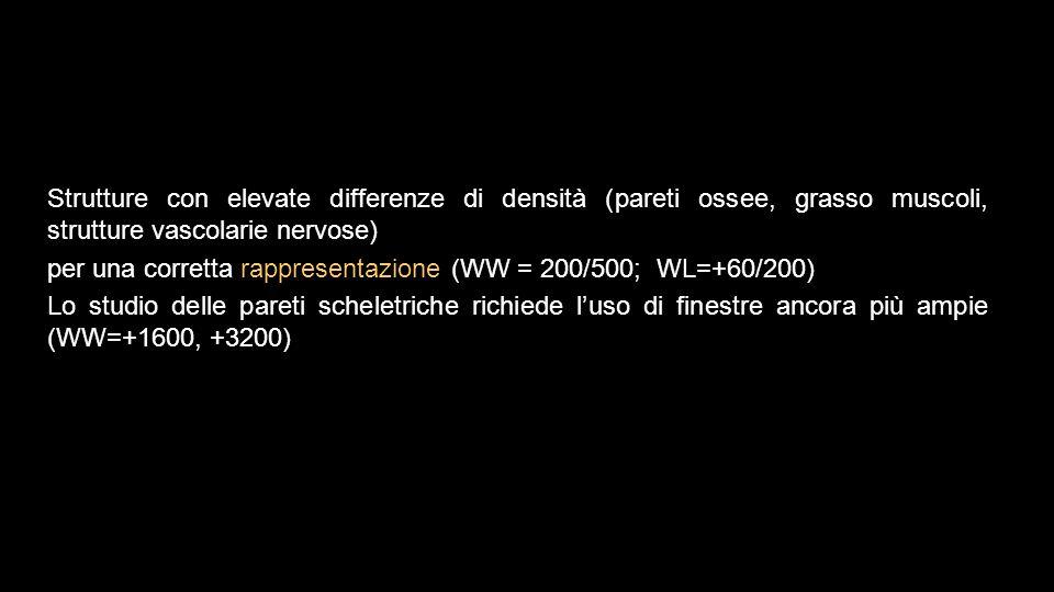 Strutture con elevate differenze di densità (pareti ossee, grasso muscoli, strutture vascolarie nervose) per una corretta rappresentazione (WW = 200/500; WL=+60/200) Lo studio delle pareti scheletriche richiede l'uso di finestre ancora più ampie (WW=+1600, +3200)