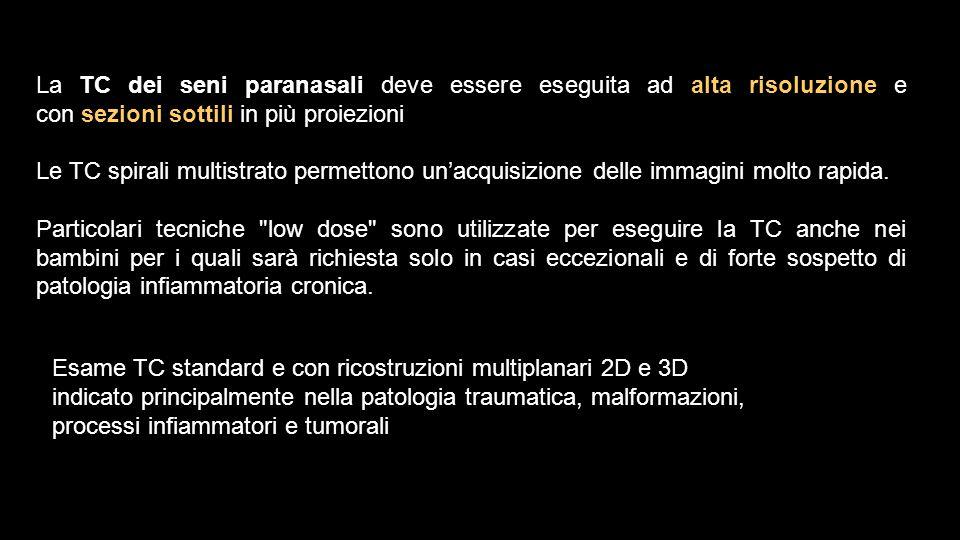 La TC dei seni paranasali deve essere eseguita ad alta risoluzione e con sezioni sottili in più proiezioni