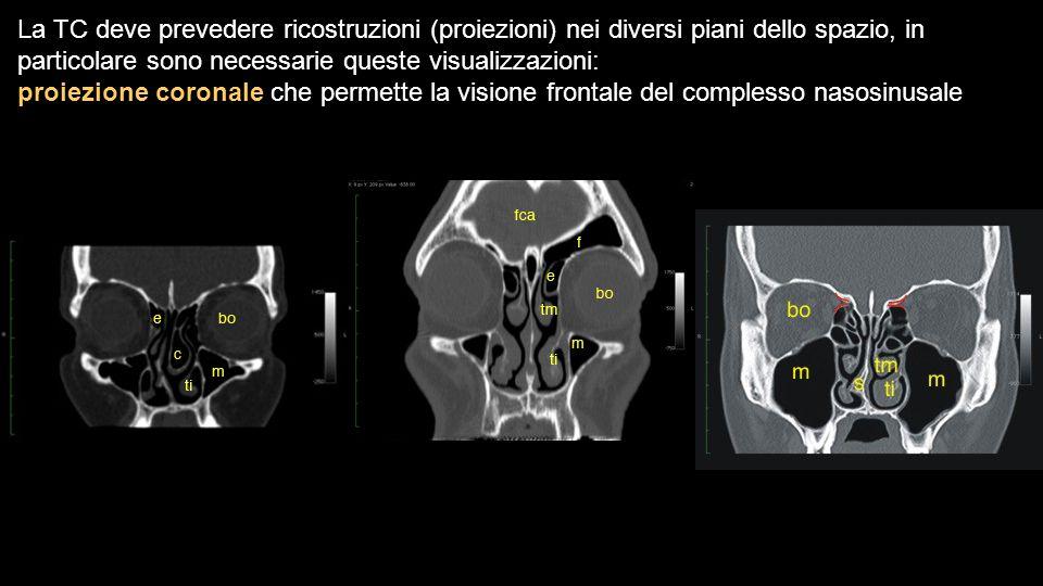 La TC deve prevedere ricostruzioni (proiezioni) nei diversi piani dello spazio, in particolare sono necessarie queste visualizzazioni:
