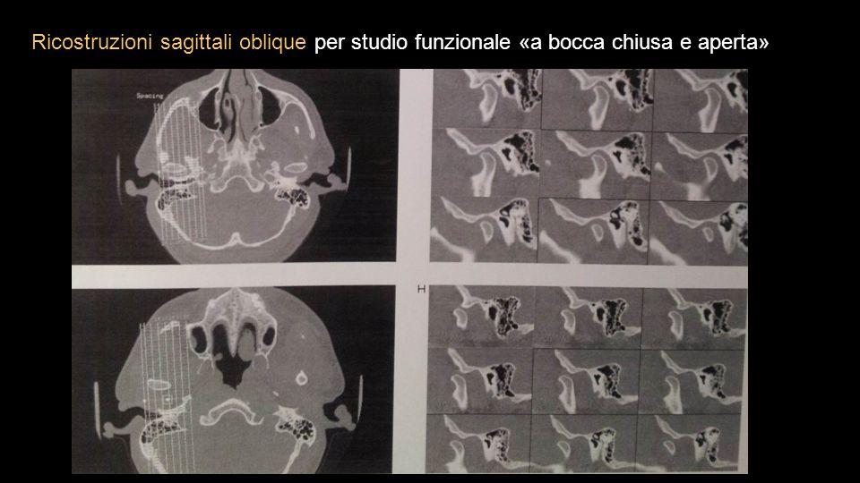 Ricostruzioni sagittali oblique per studio funzionale «a bocca chiusa e aperta»