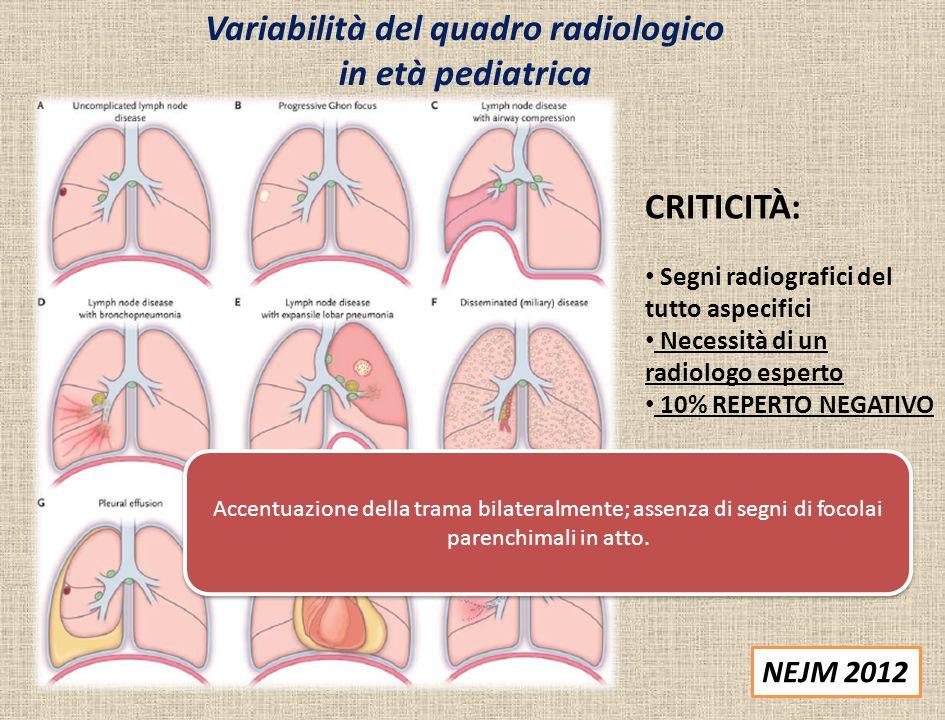 Variabilità del quadro radiologico