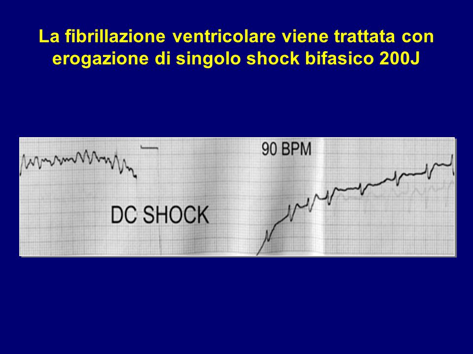 La fibrillazione ventricolare viene trattata con erogazione di singolo shock bifasico 200J