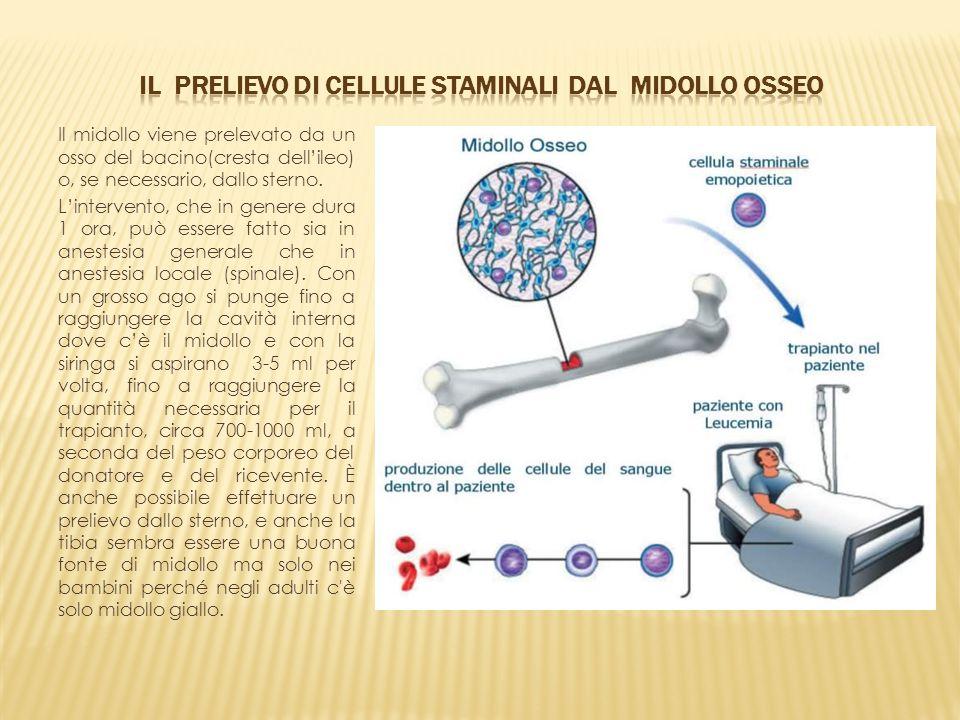Il prelievo di cellule staminali dal midollo osseo
