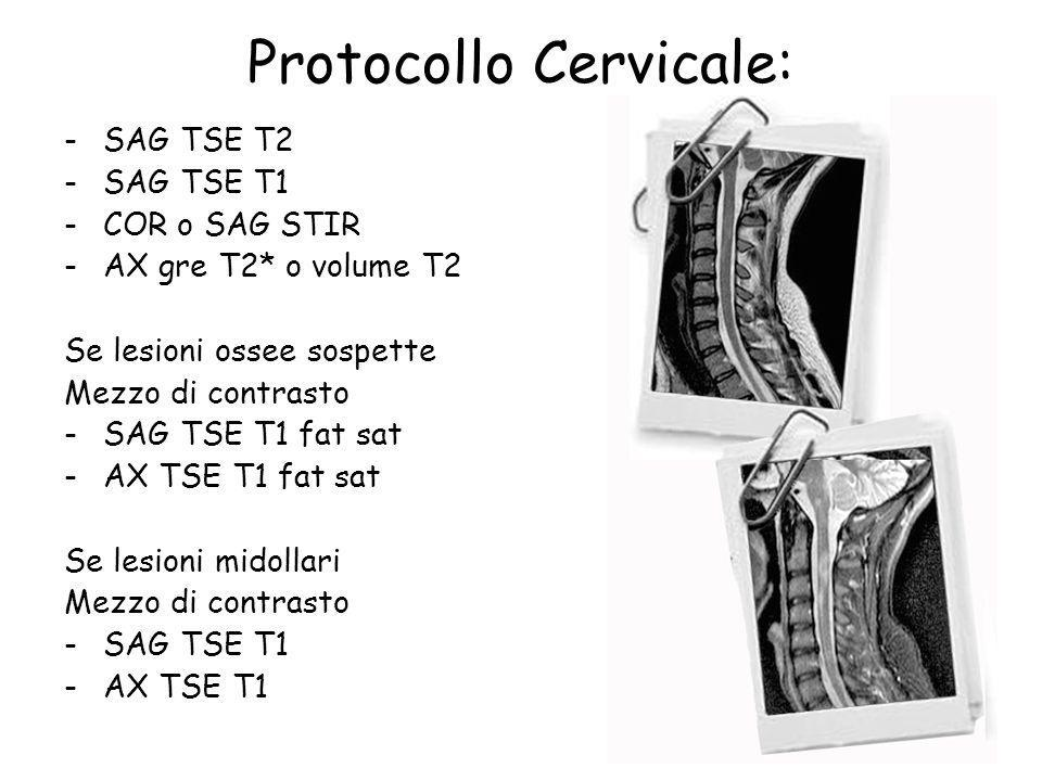 Protocollo Cervicale:
