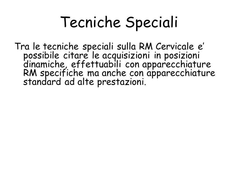 Tecniche Speciali