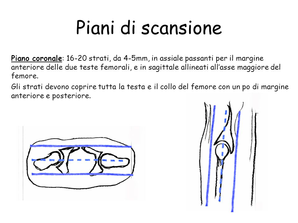 Bacino anche protocollo d esame rm ppt video online for Piani del ponte anteriore