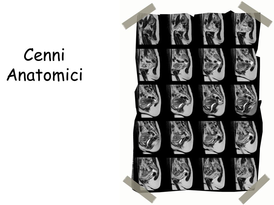 Cenni Anatomici