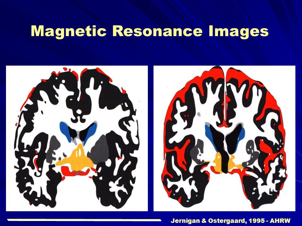 Magnetic Resonance Images