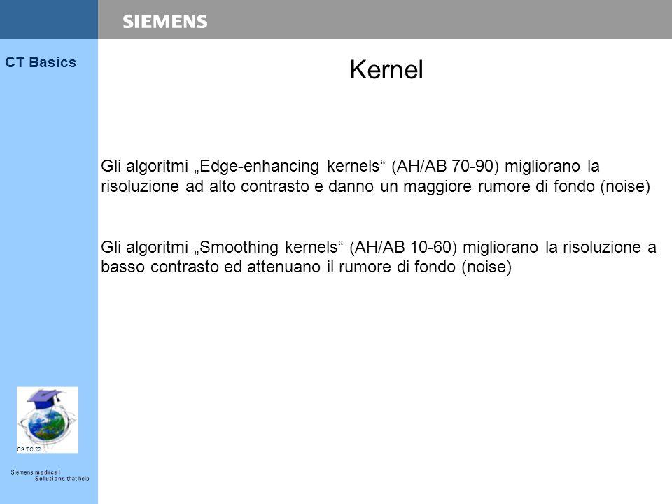 """Kernel Gli algoritmi """"Edge-enhancing kernels (AH/AB 70-90) migliorano la risoluzione ad alto contrasto e danno un maggiore rumore di fondo (noise)"""