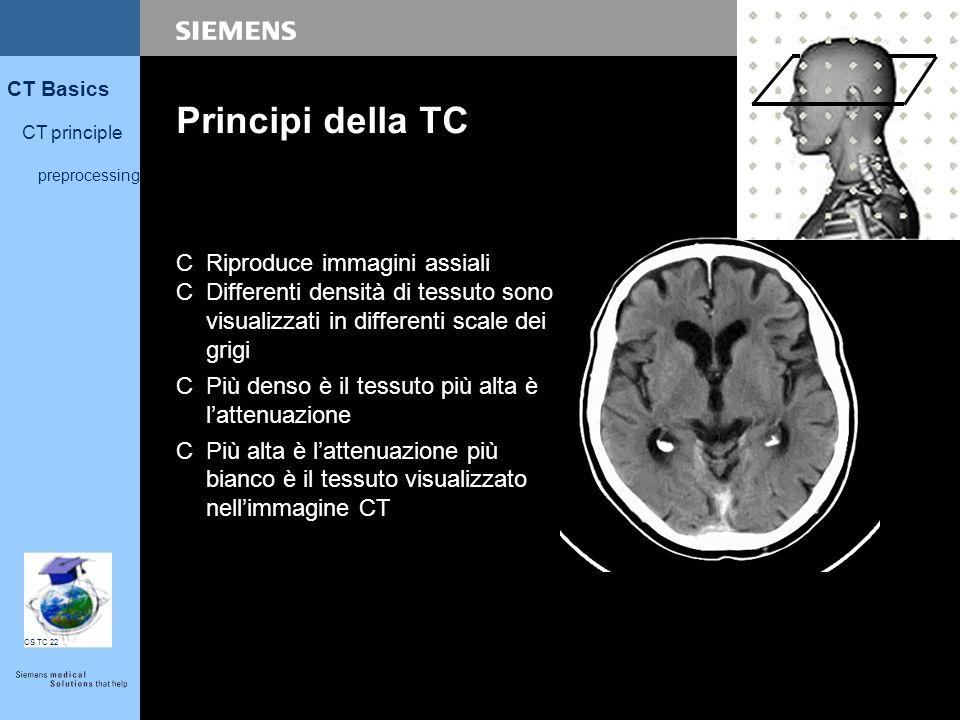 Principi della TC Riproduce immagini assiali