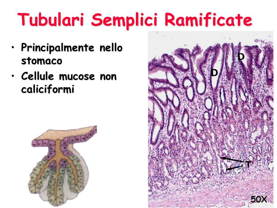 Tubulari Semplici Ramificate