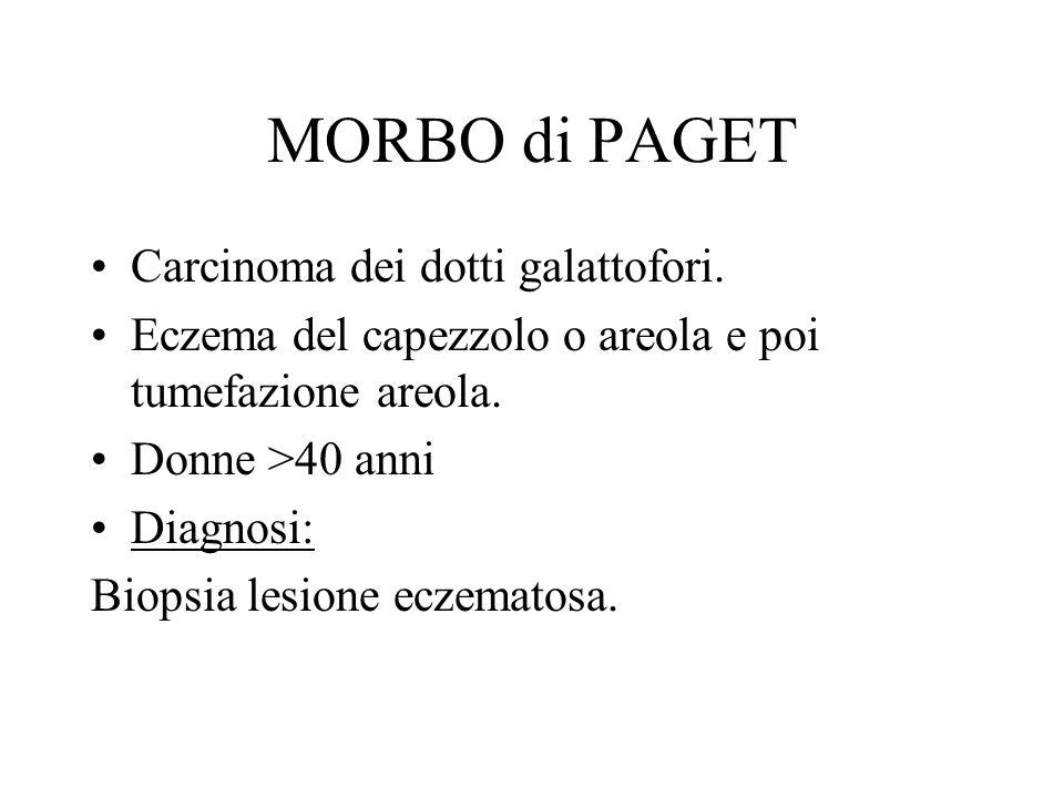 MORBO di PAGET Carcinoma dei dotti galattofori.