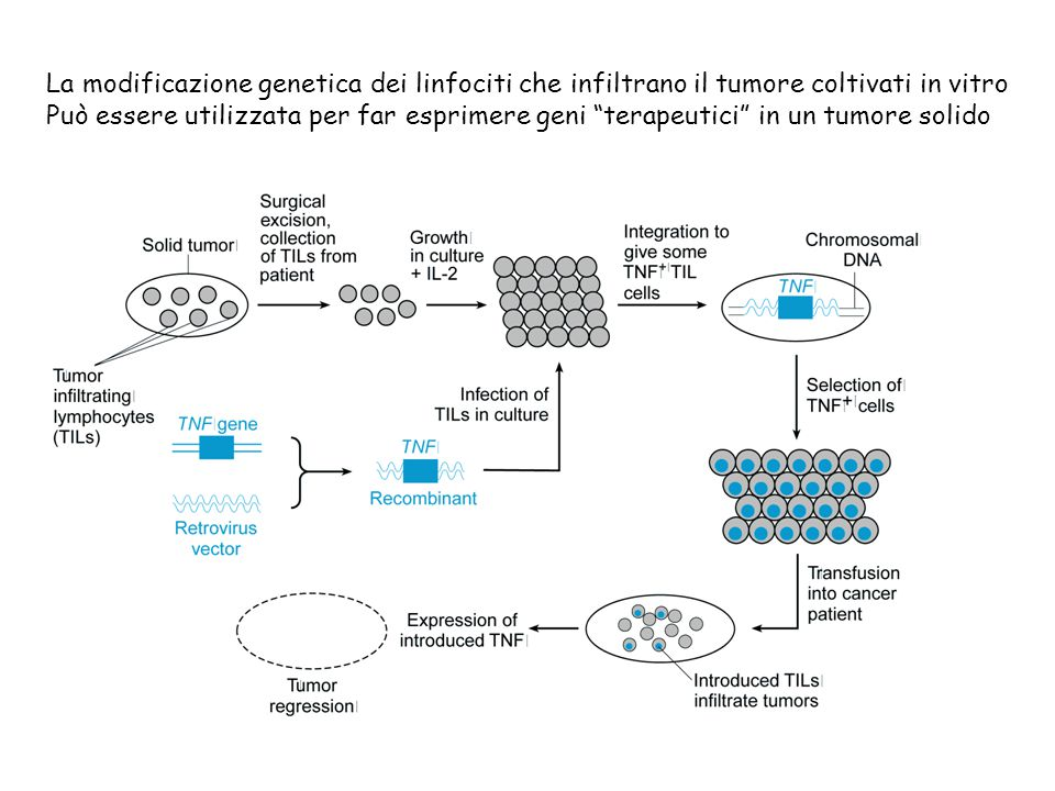 La modificazione genetica dei linfociti che infiltrano il tumore coltivati in vitro