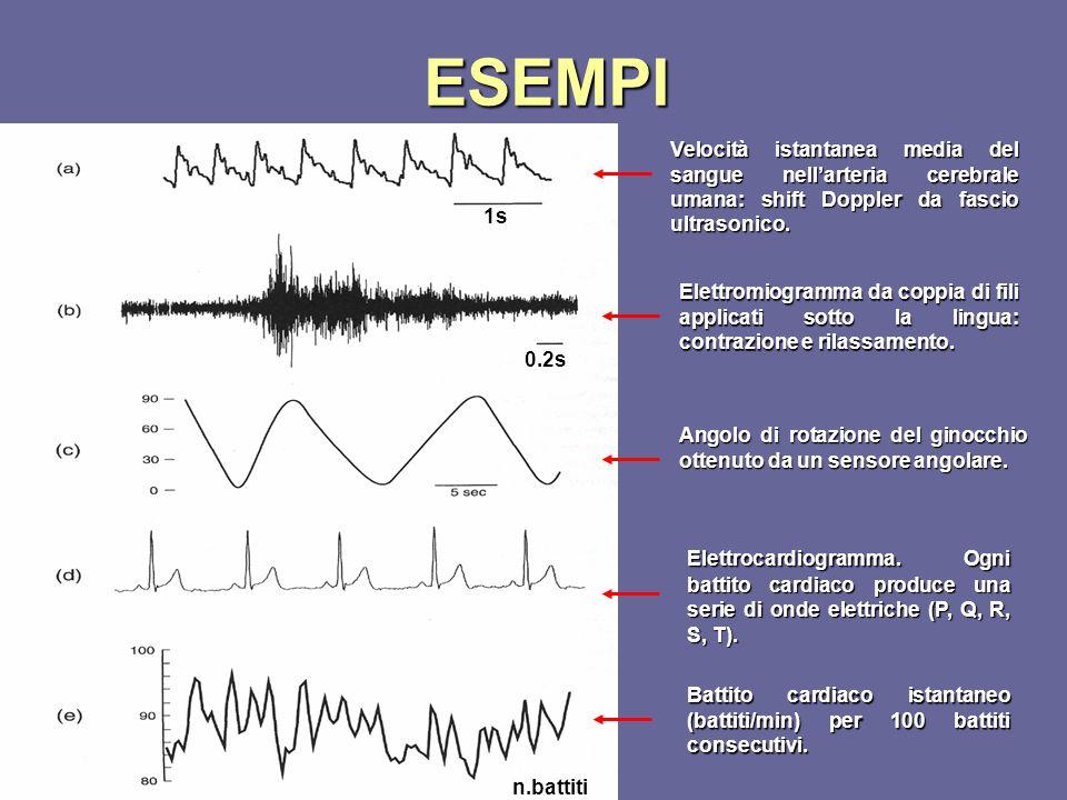 ESEMPI Velocità istantanea media del sangue nell'arteria cerebrale umana: shift Doppler da fascio ultrasonico.