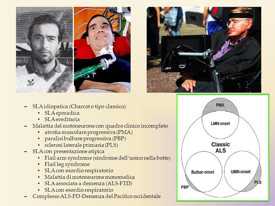 SLA idiopatica (Charcot o tipo classico)