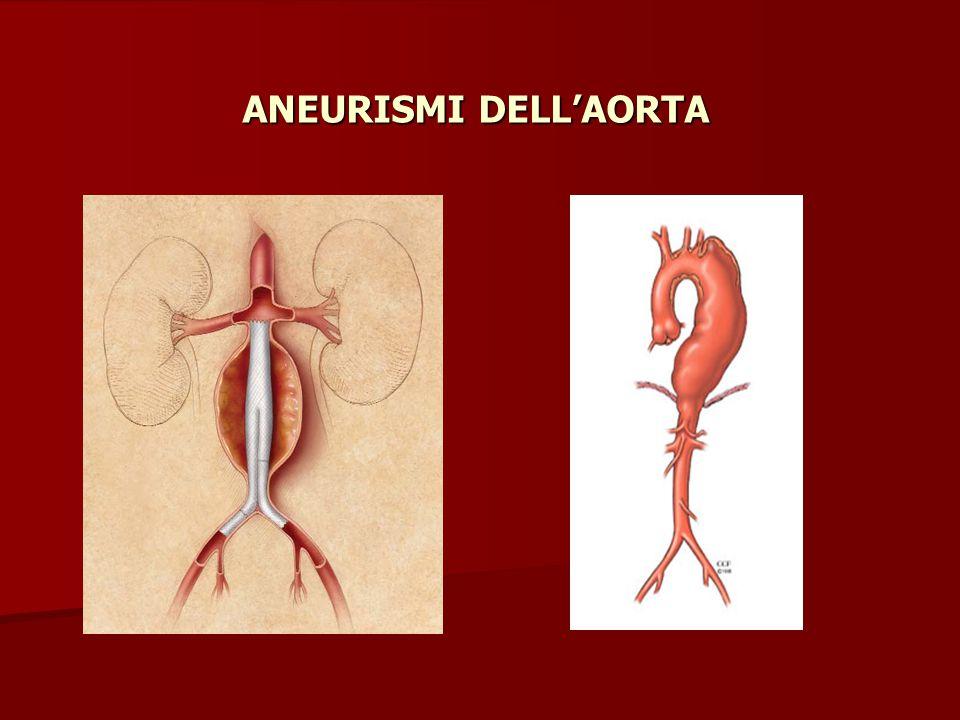 ANEURISMI DELL'AORTA