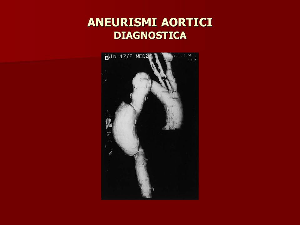 ANEURISMI AORTICI DIAGNOSTICA