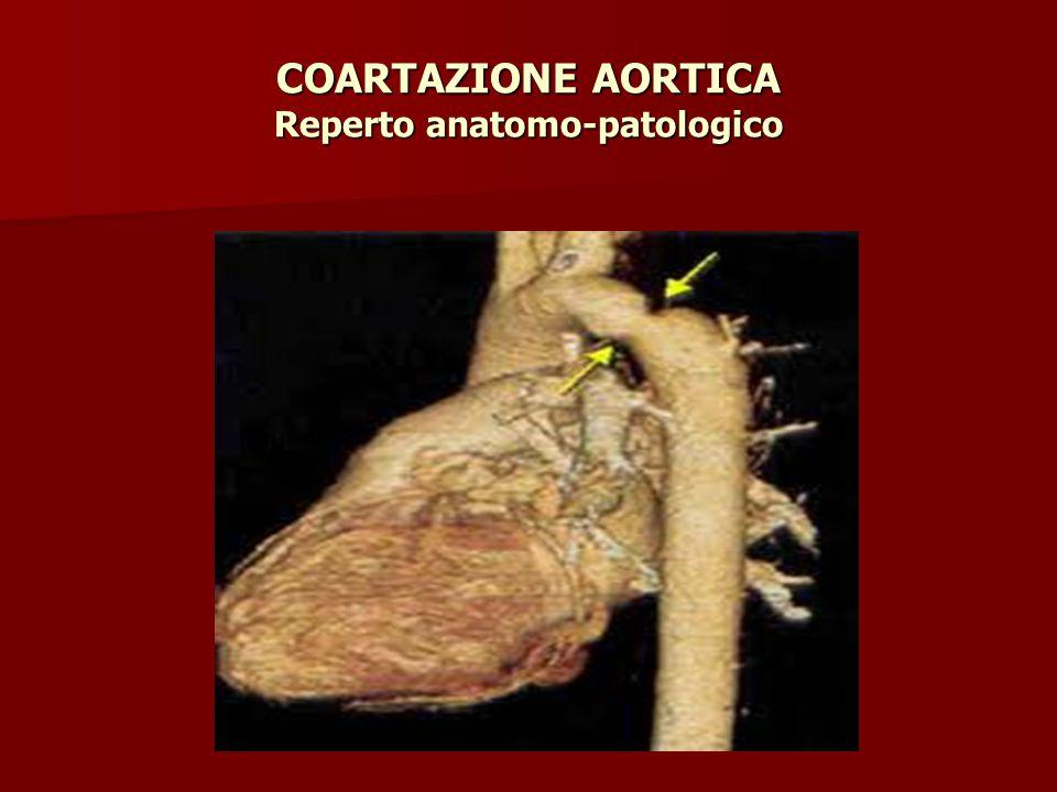 COARTAZIONE AORTICA Reperto anatomo-patologico