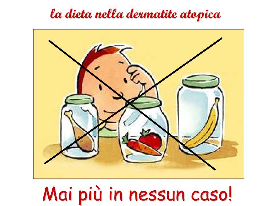 la dieta nella dermatite atopica