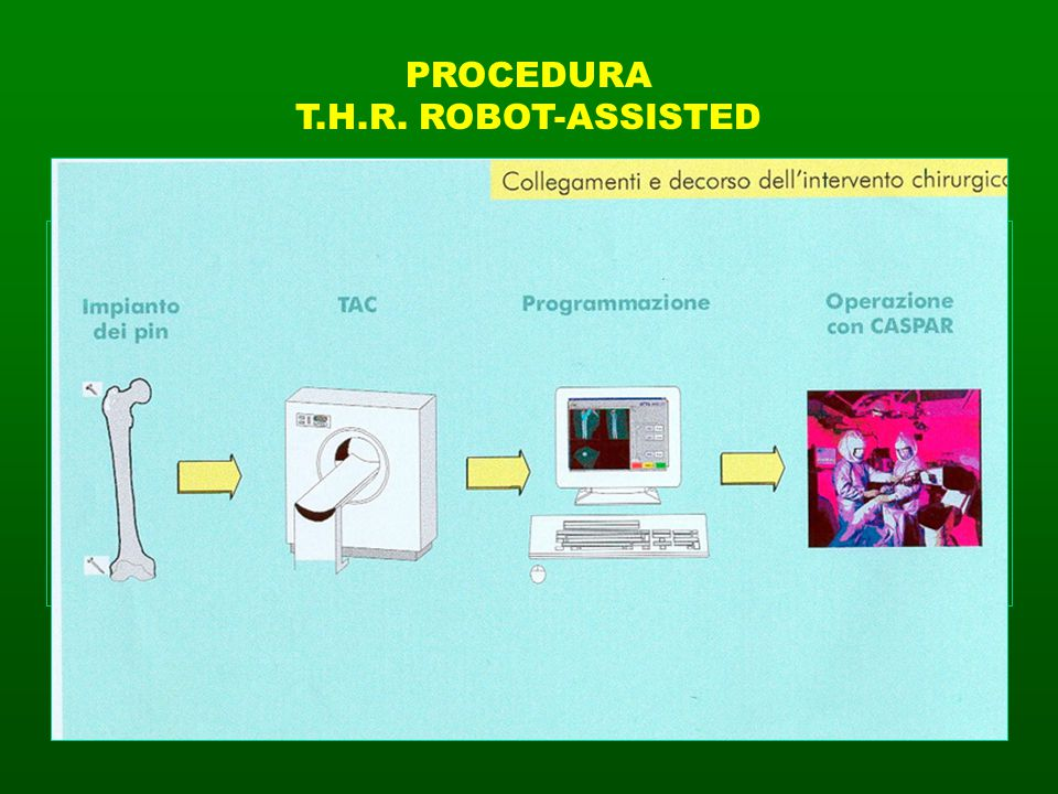 PROCEDURA T.H.R. ROBOT-ASSISTED. APPLICAZIONE VITI DI REPERE. (INTERNAL FIDUCIAL PINS Trocanterico e condilare )