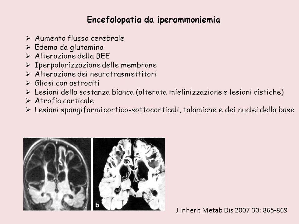 Encefalopatia da iperammoniemia