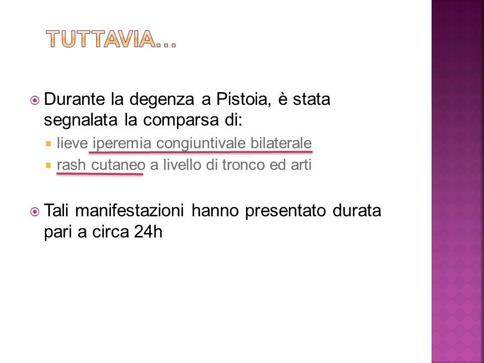 Tuttavia… Durante la degenza a Pistoia, è stata segnalata la comparsa di: lieve iperemia congiuntivale bilaterale.