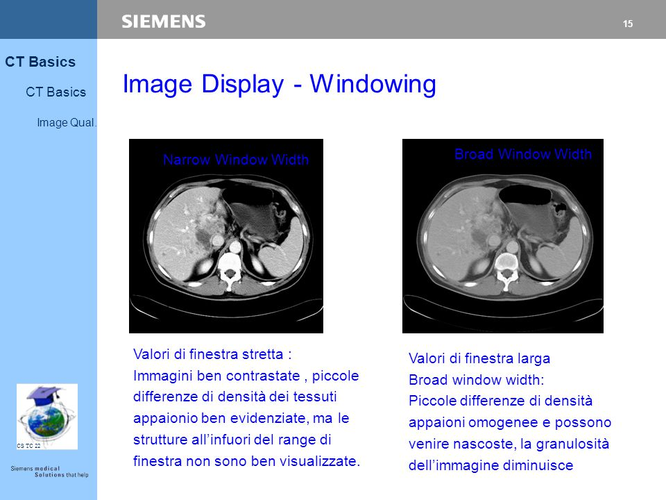 Image Display - Windowing