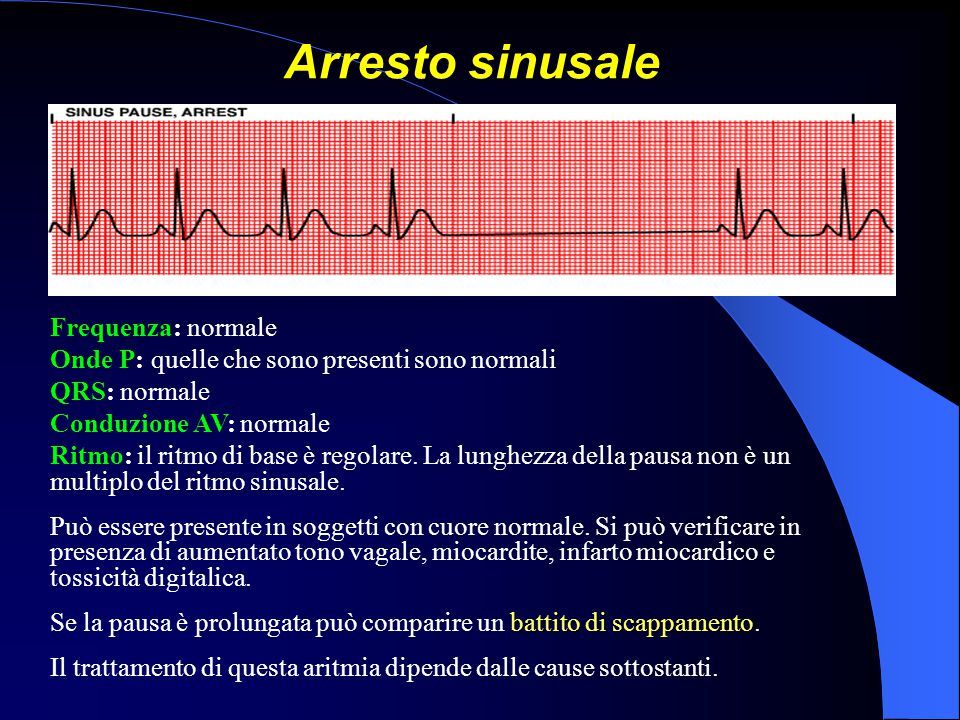 Arresto sinusale Frequenza: normale