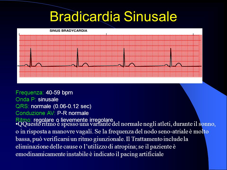 Bradicardia Sinusale Frequenza: 40-59 bpm. Onda P: sinusale. QRS: normale (0.06-0.12 sec) Conduzione AV: P-R normale.