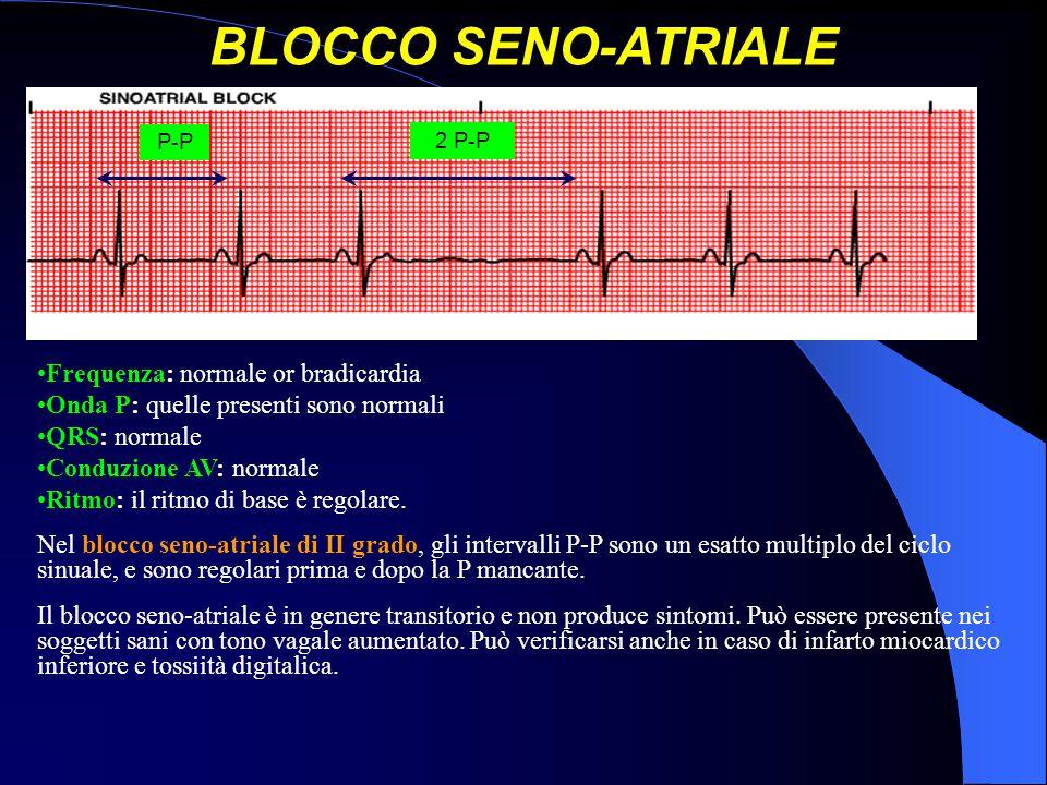 BLOCCO SENO-ATRIALE Frequenza: normale or bradicardia