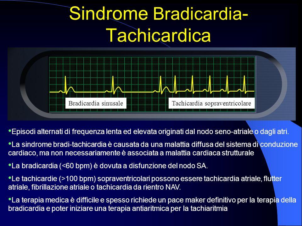 Sindrome Bradicardia-Tachicardica