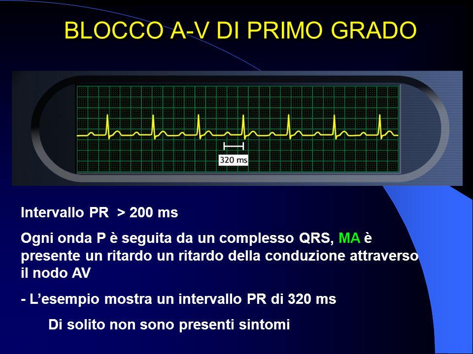BLOCCO A-V DI PRIMO GRADO